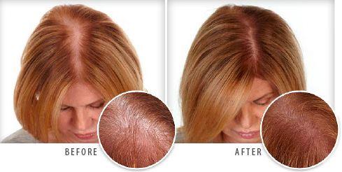 Natrol Biotin 10,000 mcg for hair